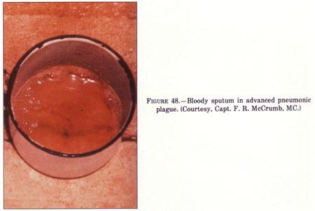 Bloody sputum